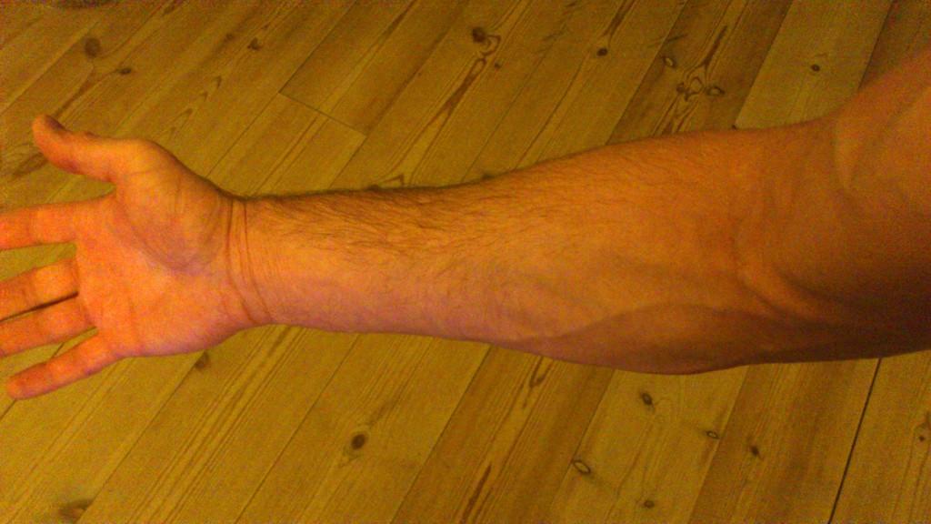 røde streger på huden